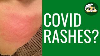 covid skin problems